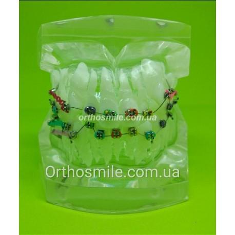Типодонт (модель зубов) с брекетами фото 1 — OrthoSmiles