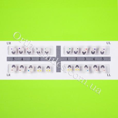 Керамические самолигирующие брекеты фото 1 — OrthoSmiles