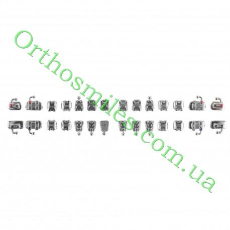Лінгвальна брекет-система Standart фото 1 — OrthoSmiles