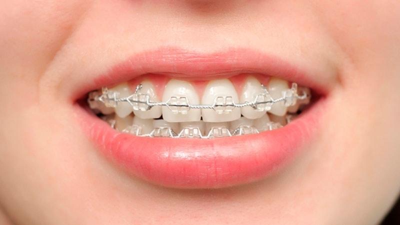 Композит с металлическим пазом. С брекетами зубы ровнее!