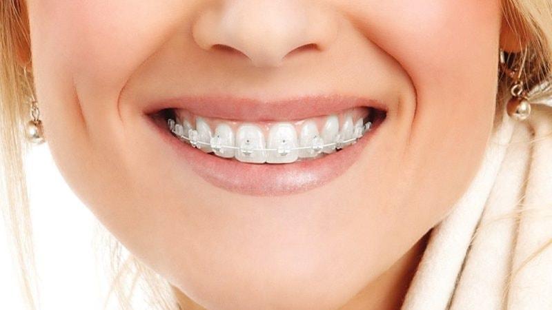 Подберите самый качественный и удобный вариант брекетов, чтобы сделать зубы ровными и красивыми!