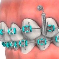 Купить ортодонтический винт