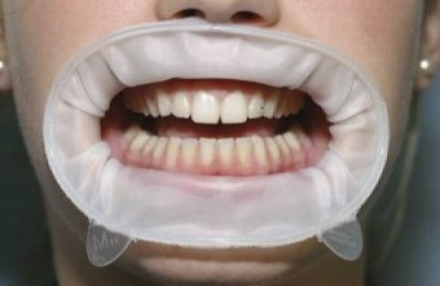ретрактор в ортодонтии